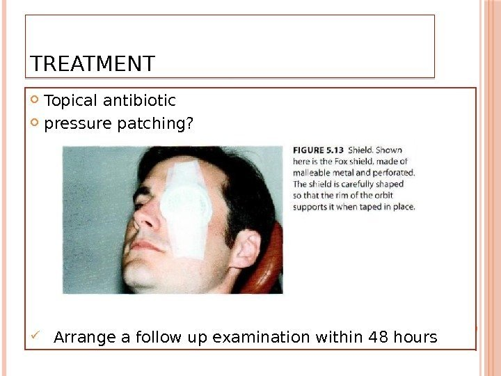 TREATMENT  Topical antibiotic  pressure patching?  Arrange a follow up examination within