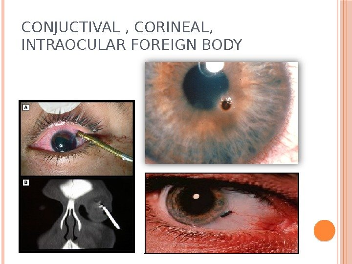 CONJUCTIVAL , CORINEAL,  INTRAOCULAR FOREIGN BODY