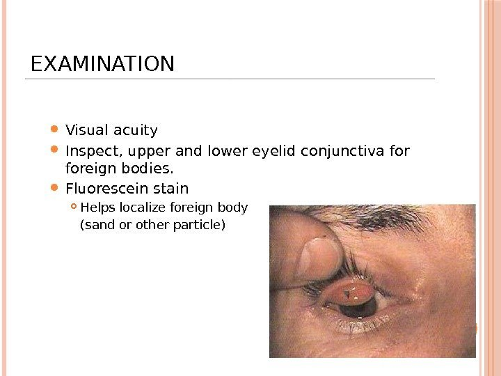 EXAMINATION Visual acuity Inspect, upper and lower eyelid conjunctiva foreign bodies.  Fluorescein stain
