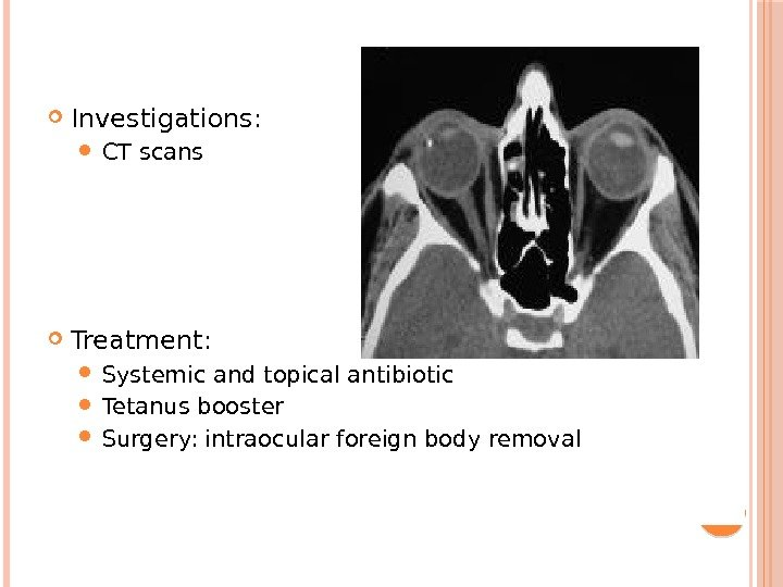 Investigations:  CT scans Treatment:  Systemic and topical antibiotic Tetanus booster