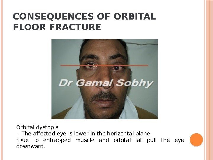 CONSEQUENCES OF ORBITAL FLOOR FRACTURE Orbital dystopia - The affected eye is lower in