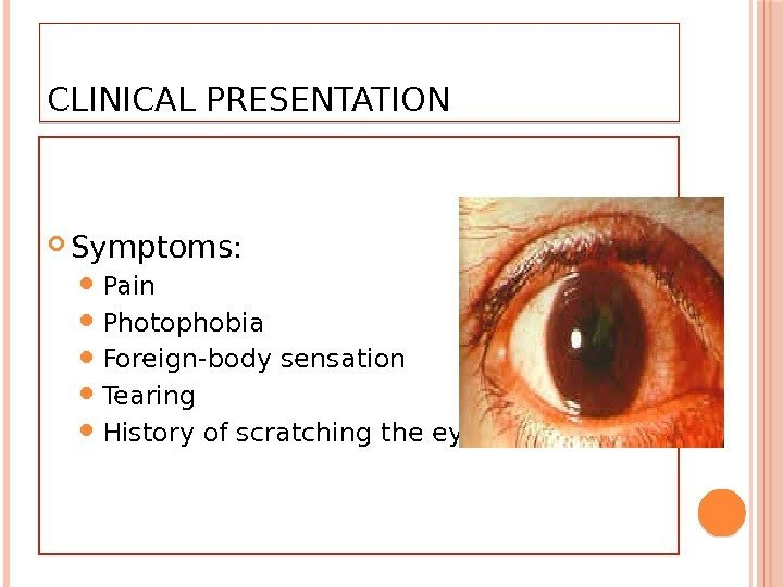 CLINICAL PRESENTATION  Symptoms:  Pain Photophobia Foreign-body sensation Tearing History of scratching the