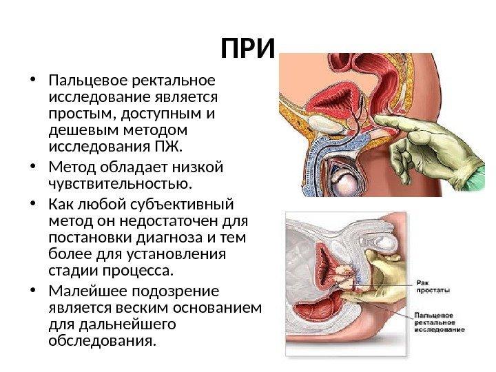 Лечение простатита просто