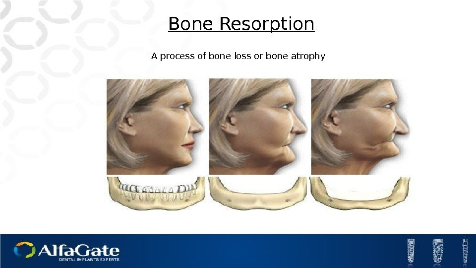 A process of bone loss or bone atrophy Bone Resorption
