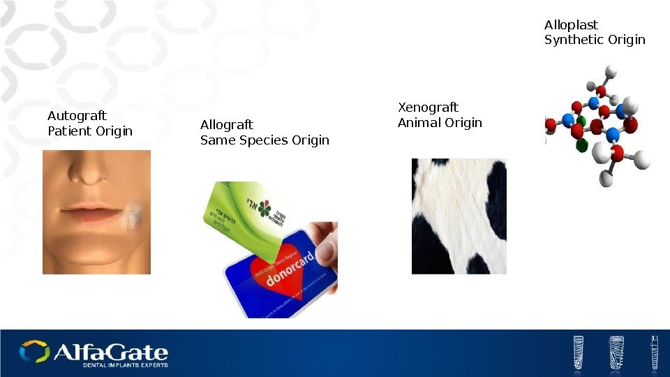 Autograft Patient Origin Allograft Same Species Origin Xenograft Animal Origin Alloplast Synthetic Origin