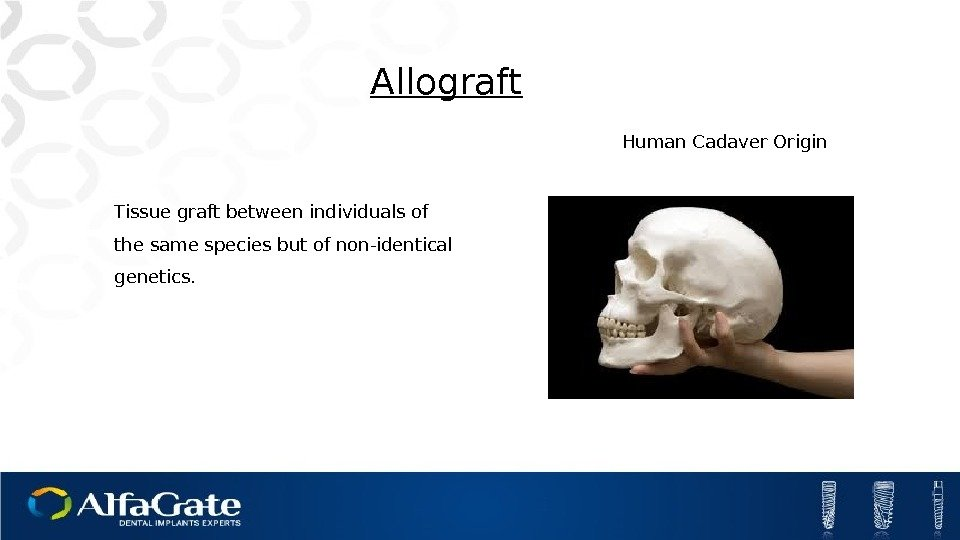 Tissue graft between individuals of the same species but of non-identical genetics. Allograft Human