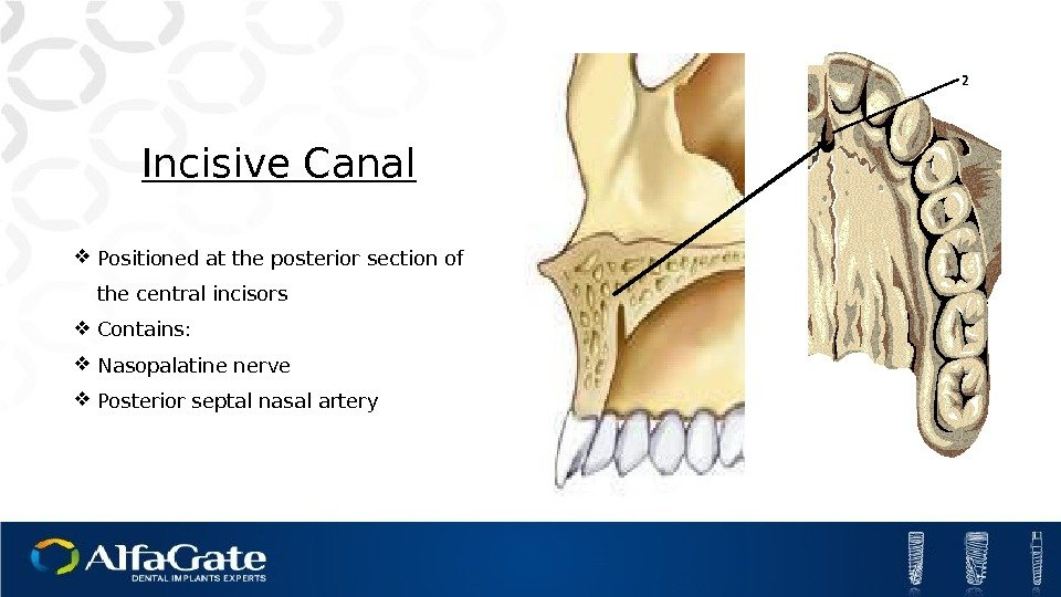 Incisive Canal Positioned at the posterior section of the central incisors Contains:  Nasopalatine