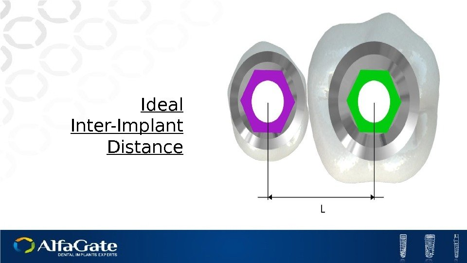 Ideal Inter-Implant Distance