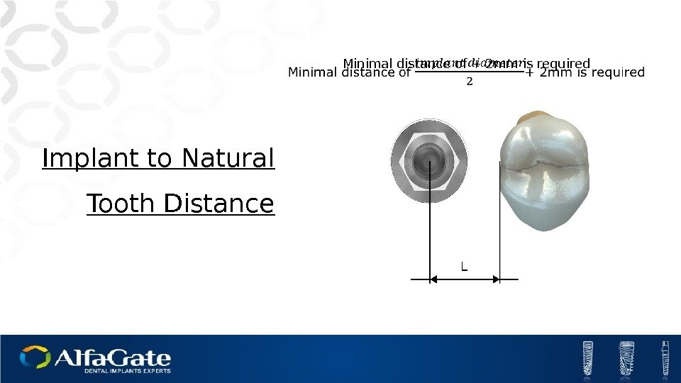 Minimal distance of + 2 mm is required Implant to Natural Tooth Distance