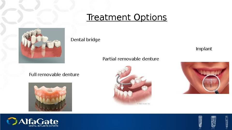 Dental bridge Treatment Options Partial removable denture Full removable denture Implant