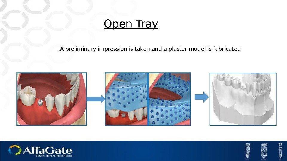 Open Tray A preliminary impression is taken and a plaster model is fabricated.