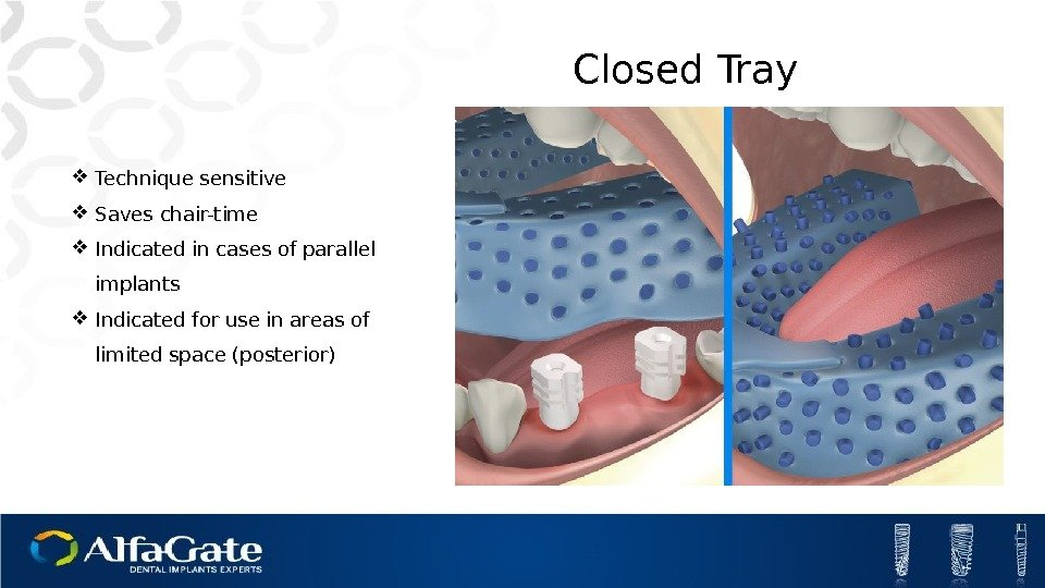 Closed Tray Technique sensitive Saves chair-time Indicated in cases of parallel implants Indicated for