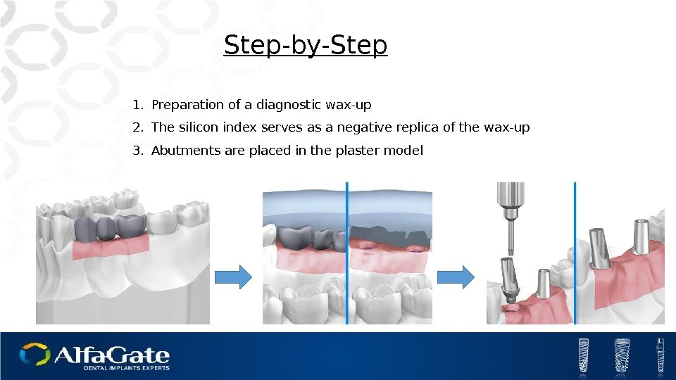 Step-by-Step 1. Preparation of a diagnostic wax-up 2. The silicon index serves as a