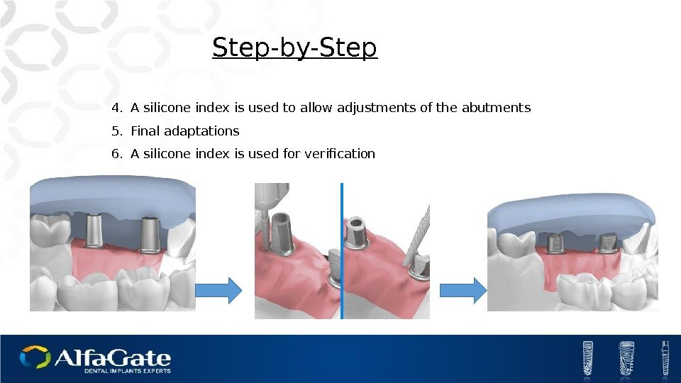 Step-by-Step 4. A silicone index is used to allow adjustments of the abutments 5.