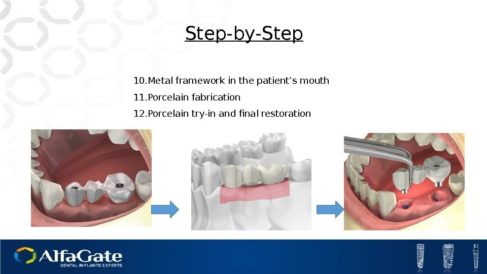 10. Metal framework in the patient's mouth 11. Porcelain fabrication 12. Porcelain try-in and