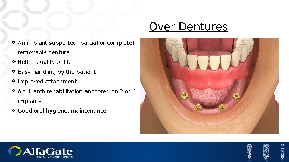Over Dentures An implant supported (partial or complete) removable denture Better quality of life