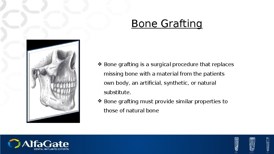 Bone grafting is a surgical procedure that replaces missing bone with a material