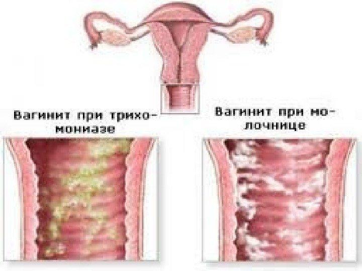 kishechnaya-palochka-vo-vlagalishe-naznachili