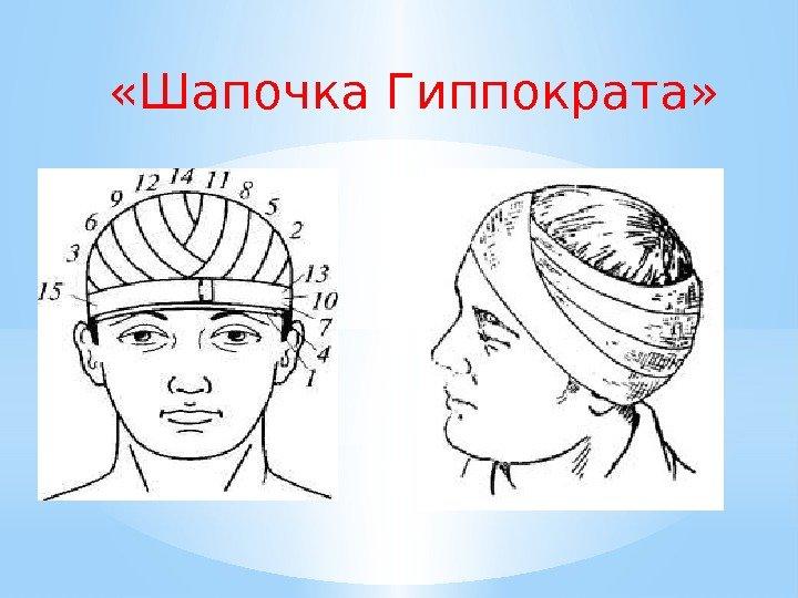 наложение картинки на шапку можно оформить