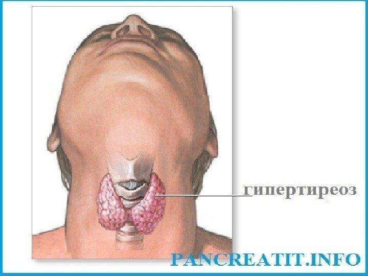 один щитовидная железа в разрезе таких случаях пользователи