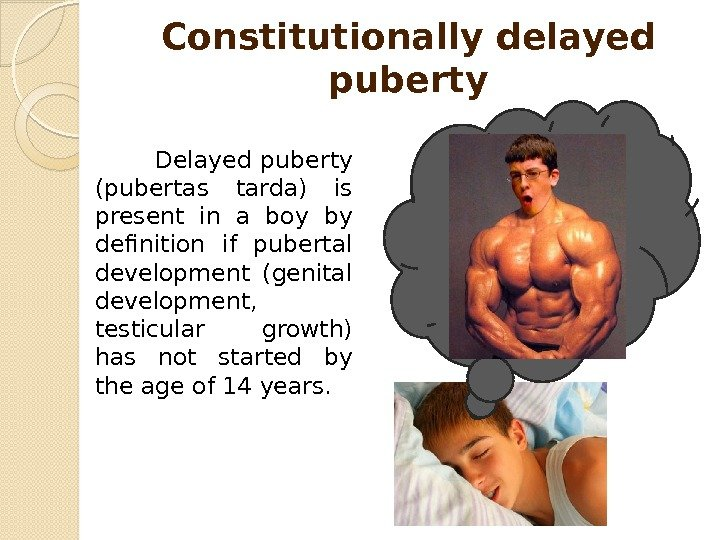 Constitutionally delayed puberty    Delayed puberty (pubertas tarda) is present in a