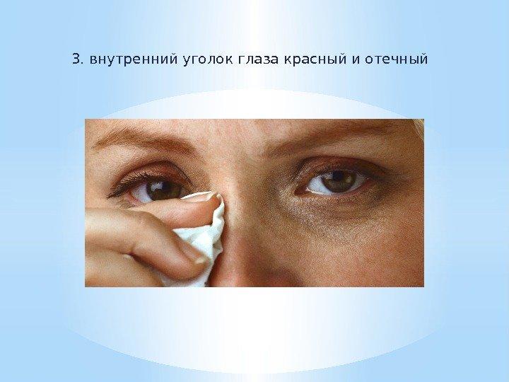 Внутренний угол глаза болит что делать 100