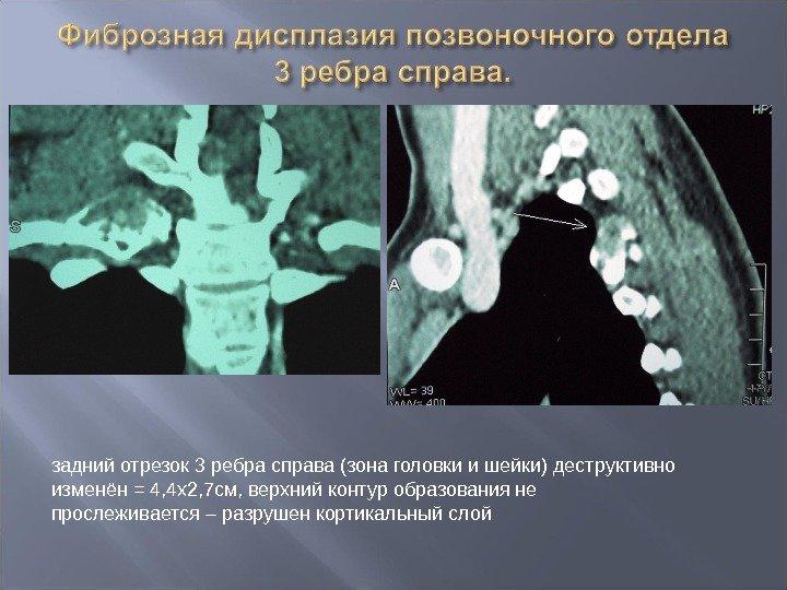 Дисплазия позвоночника у детей симптомы и лечение