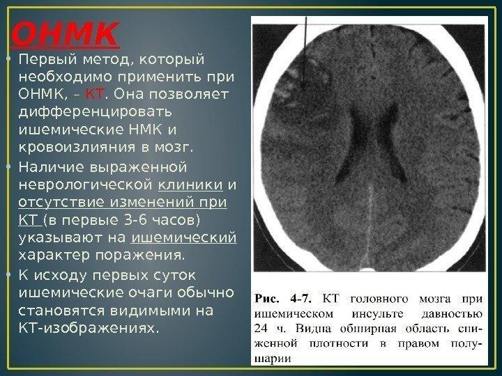Истории по неврологии инсульт