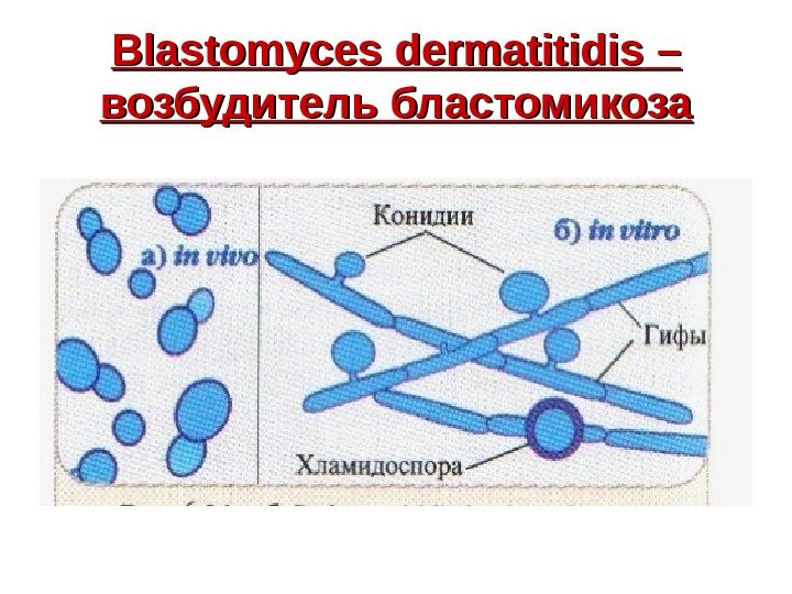 Blastomyces dermatitidis – – возбудитель бластомикоза