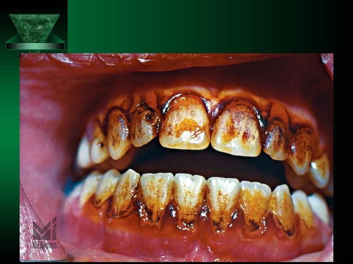 Болезни зубов картинки
