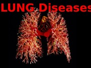 LUNG Diseases  Function of the Respiratory System