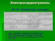 Электрокардиограммы ЭКГ №1. Желудочковая тахикардия Ритм: тахикардия с