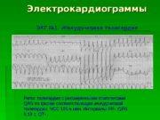 Электрокардиограммы ЭКГ № 1. Желудочковая тахикардия Ритм: тахикардия