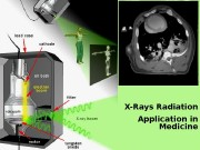 X-Rays Radiation Application in Medicine  IONIZING RADIATION
