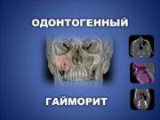 ОДОНТОГЕННЫЙ ГАЙМОРИТ Два крайних типа гайморовой пазухи Пневматический