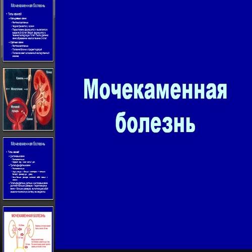 Презентация Мочекаменная болезнь
