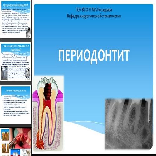 Презентация Периодонтит