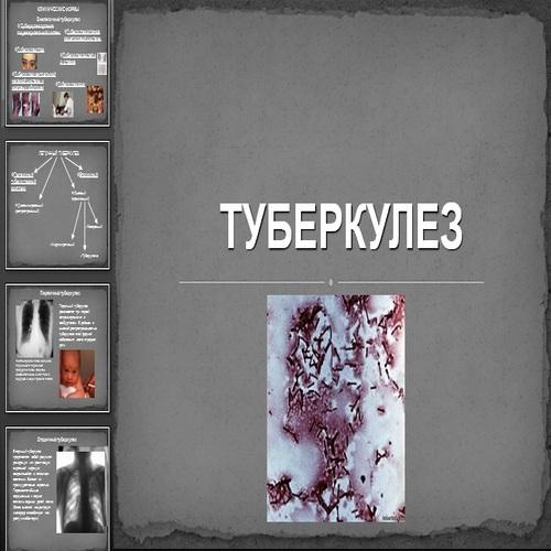 Презентация Туберкулез