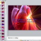 Презентация  Беременность и пролапс митрального клапана