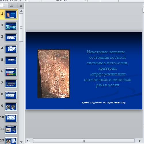 Презентация Остеопороз и метастаза рака в кости