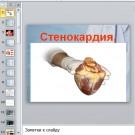 Презентация Стенокардия