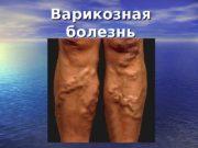 Варикозная болезнь  Варикозная болезнь-  это заболевание,