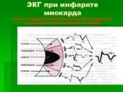 ЭКГ при инфаркте   миокарда Схема