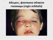 Абсцесс, флегмона области глазницы (regio orbitalis)  Флегмона