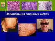 Заболевания слюнных желез  Классификация I. Дистрофические: а)