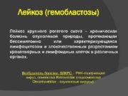 Лейкоз (гемобластозы) Лейкоз крупного рогатого скота