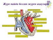 Жүре пайда болған жүрек ақаулары Өкпе артериясы Өкпе