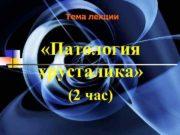 Тема лекции «Патология хрусталика» (2 час)  Патология