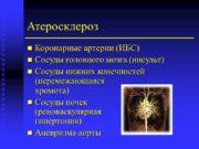 Атеросклероз Коронарные артерии (ИБС) Сосуды головного мозга (инсульт)