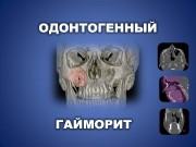 Склеротический тип Пазуха маленькая и не внедряется в